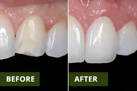 Cosmetic Dentist 11375   Dentist 11375   Best Dentist 11374